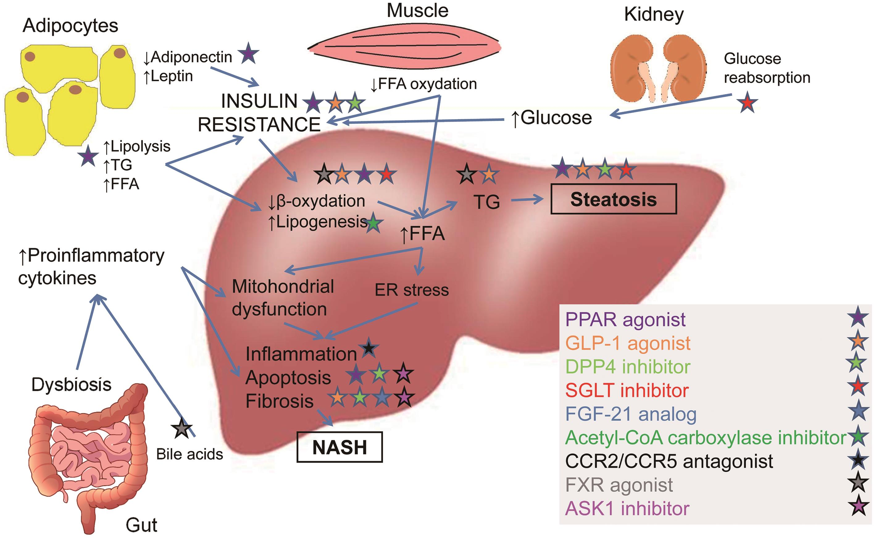 Proposed mechanisms of action of new agents for treatment of NASH.