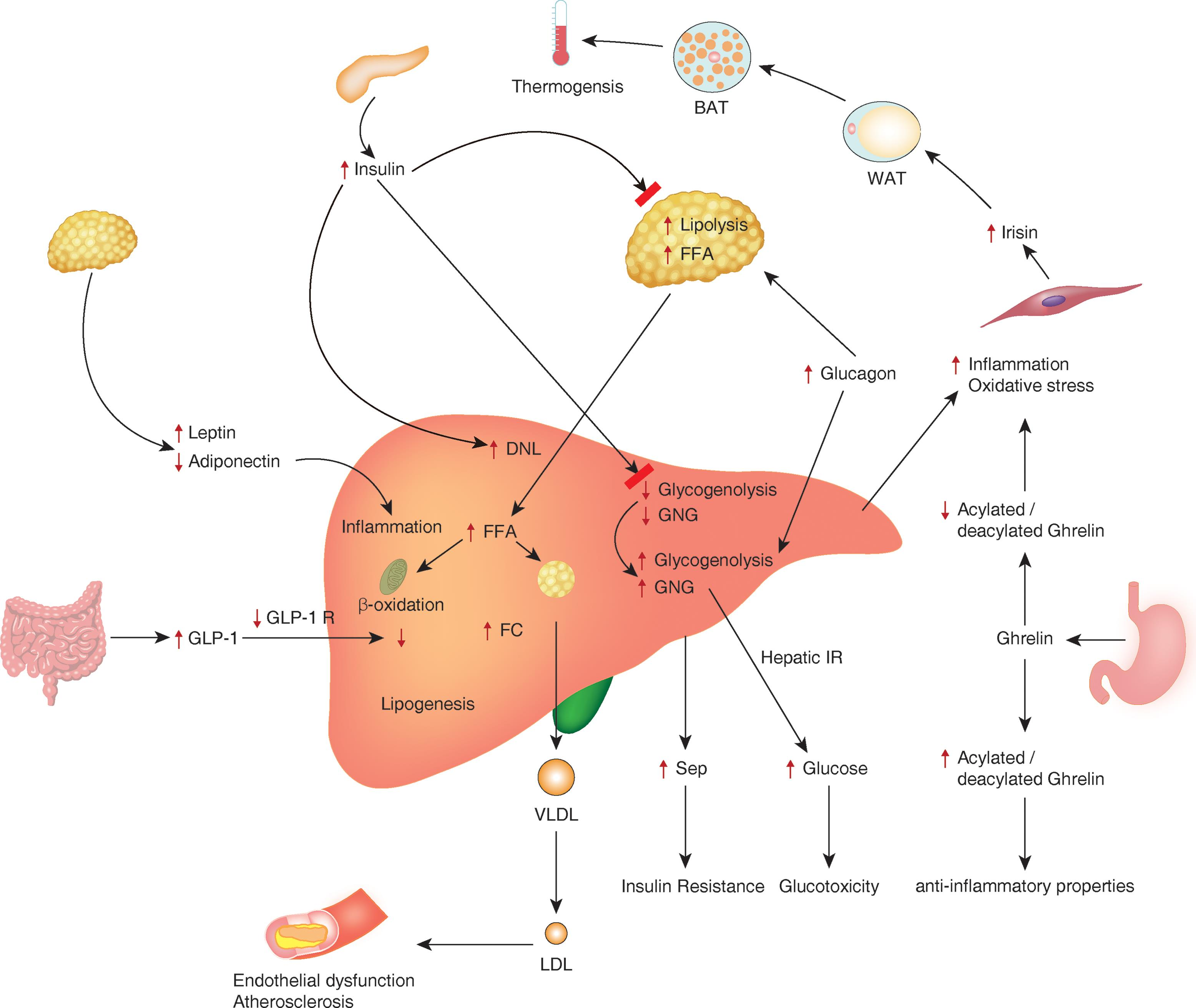 Pathophysiological mechanisms involved in the development and complications of nonalcoholic fatty liver disease (NAFLD).