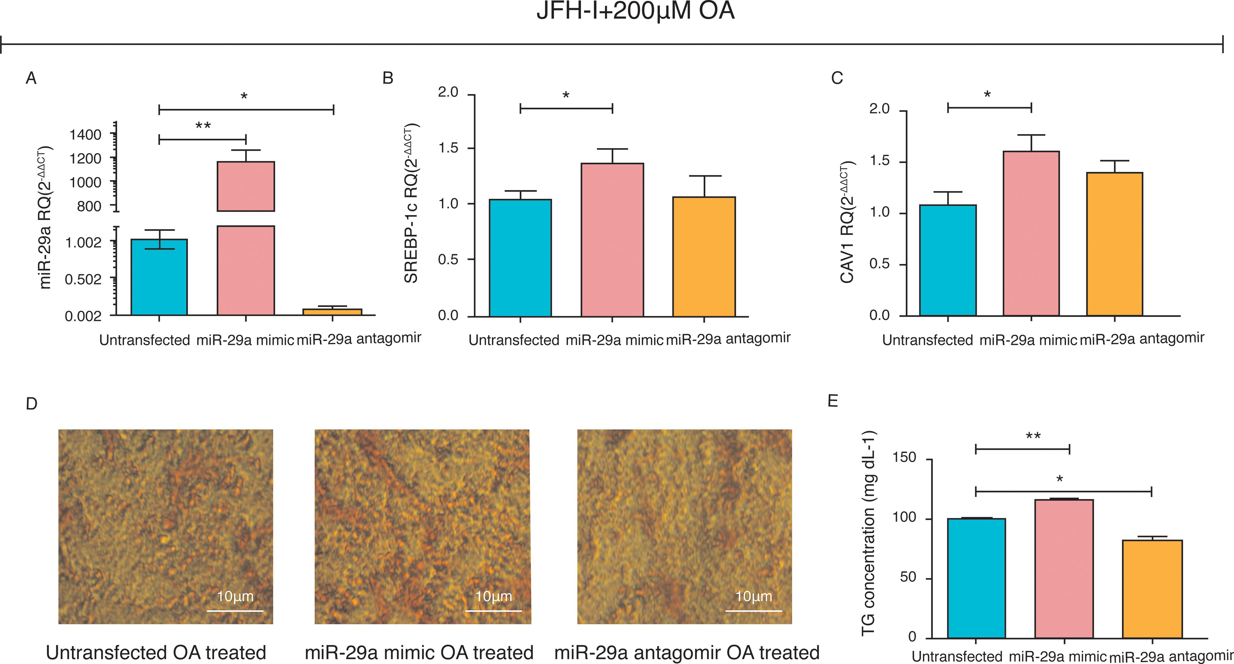 miR-29a Promotes Lipid Droplet and Triglyceride Formation in