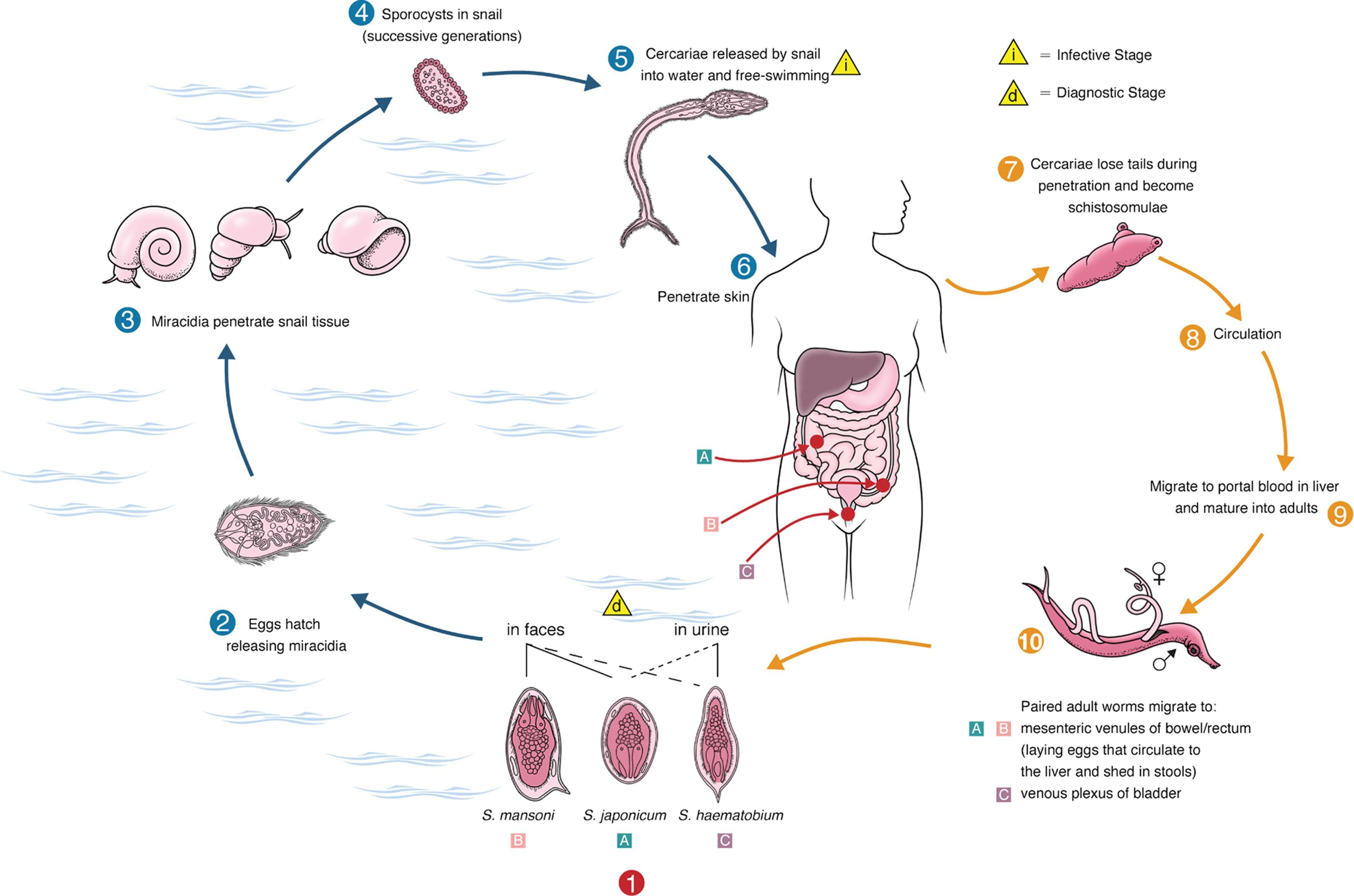 schistosomiasis hólyag röntgen)