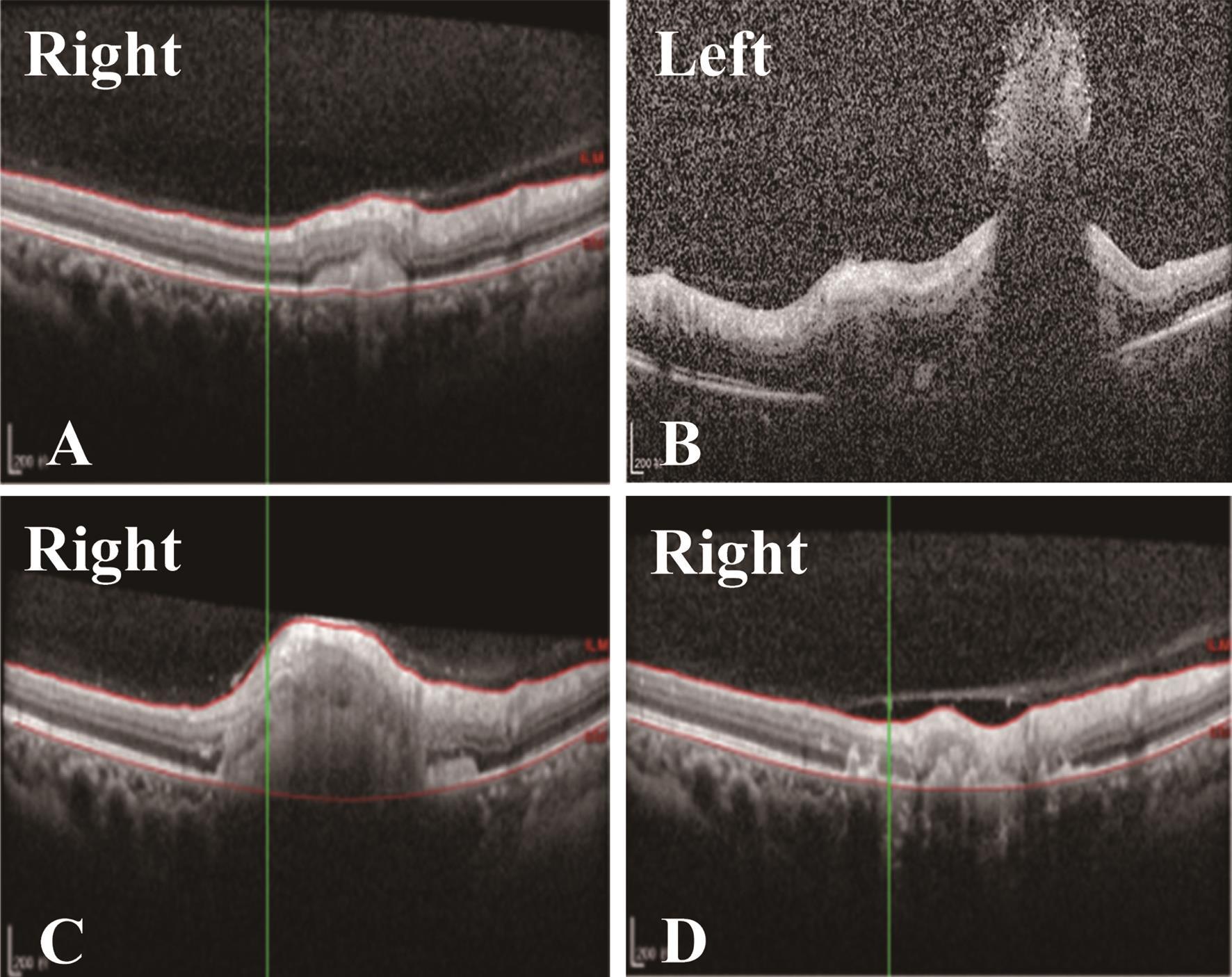 Eye optical coherence tomography images.