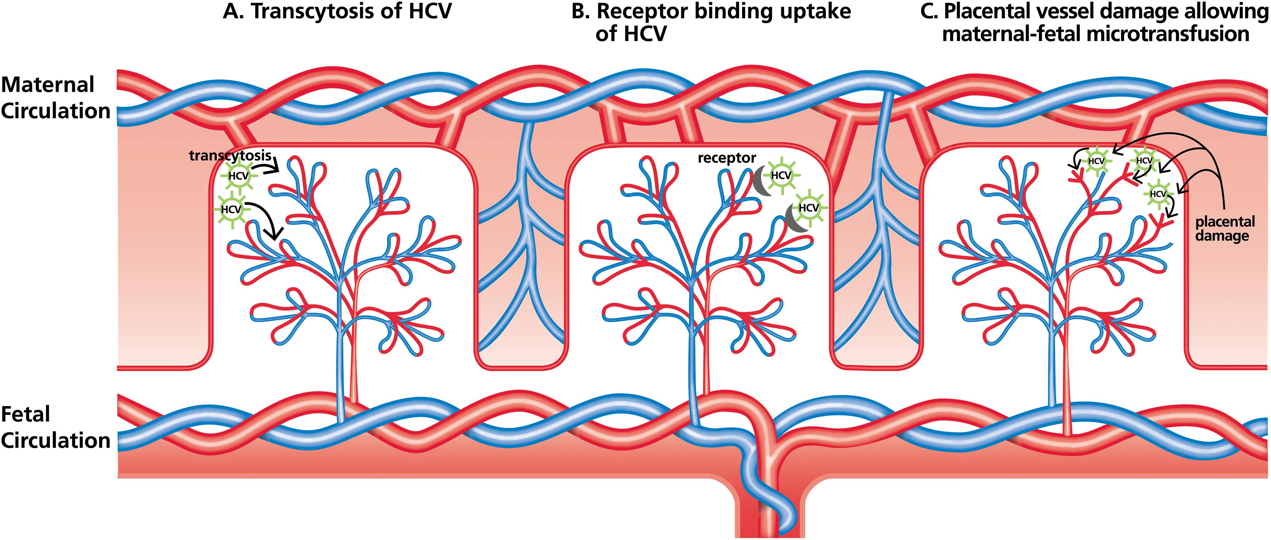 Proposed mechanisms of HCV VT.