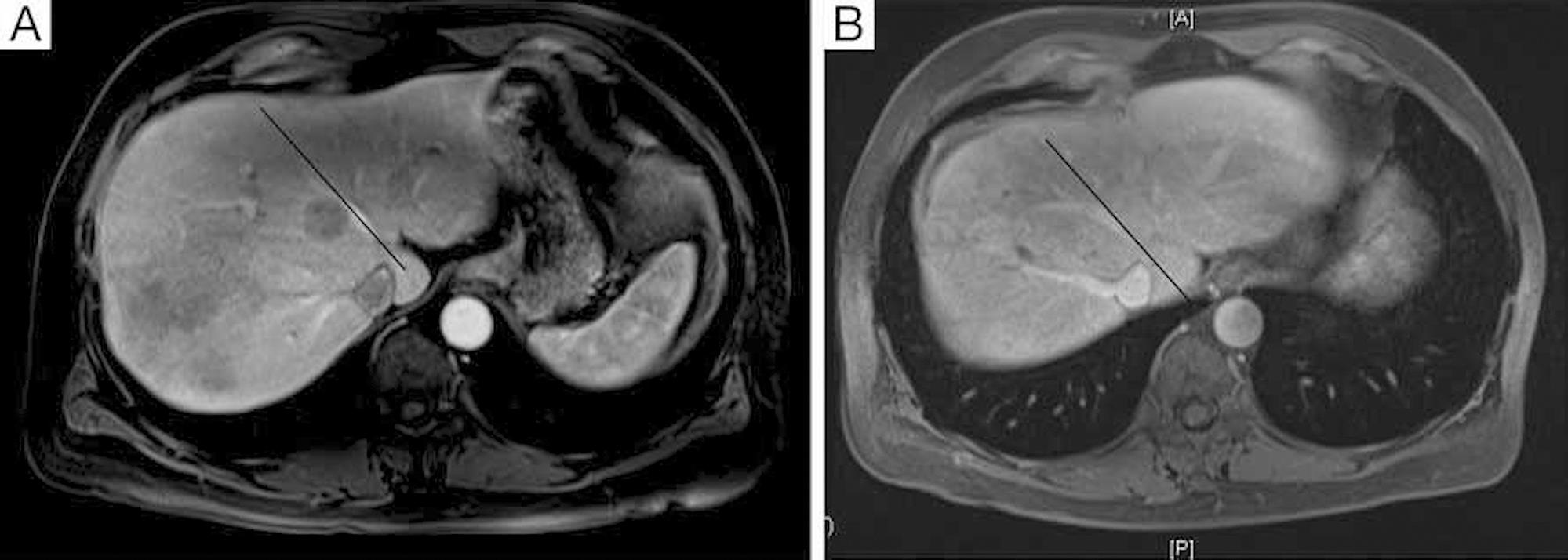 (A) Pre-portal vein embolization of right lobe of liver to induce hypertrophy of left lobe of liver. (B) Six weeks post-portal vein embolization of right lobe of liver to induce hypertrophy of left lobe of liver.
