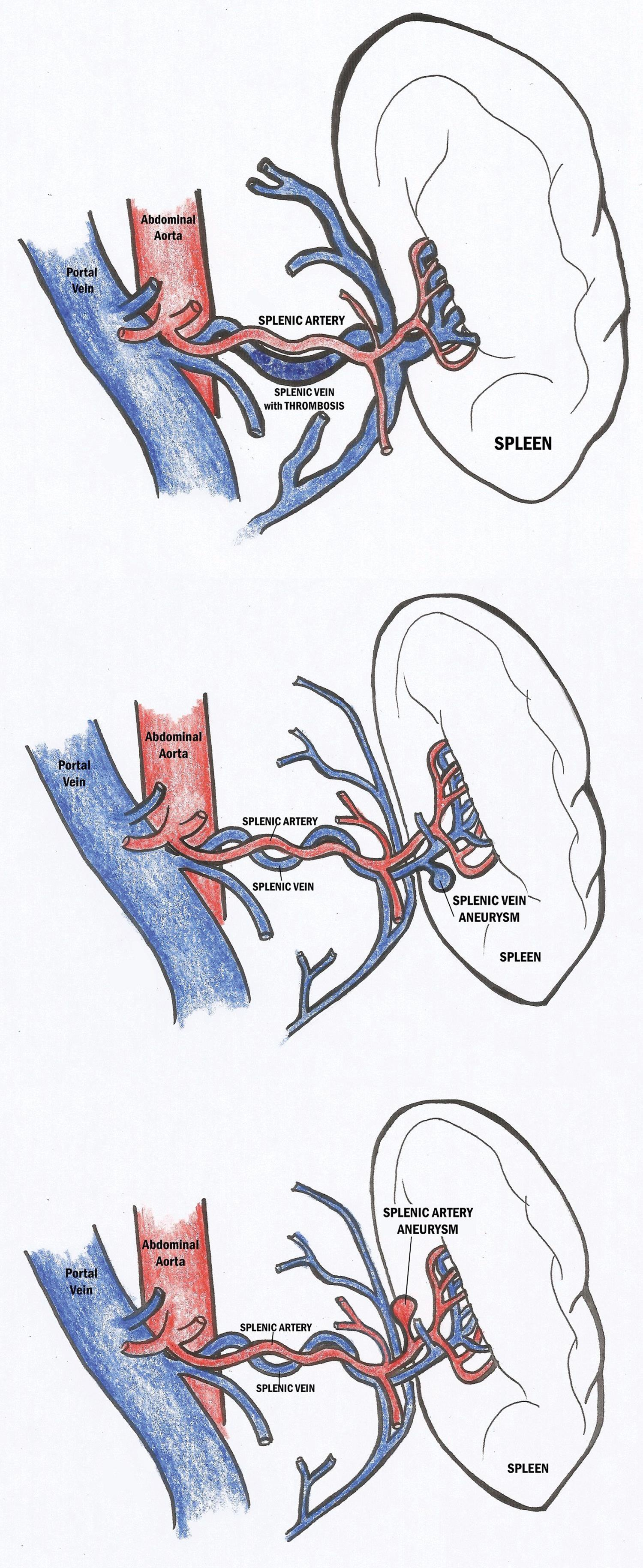 Schematic diagrams of a splenic vein thrombosis with associated splenomegaly (topmost image), splenic vein aneurysm (center image), and a splenic artery aneurysm (bottom image).