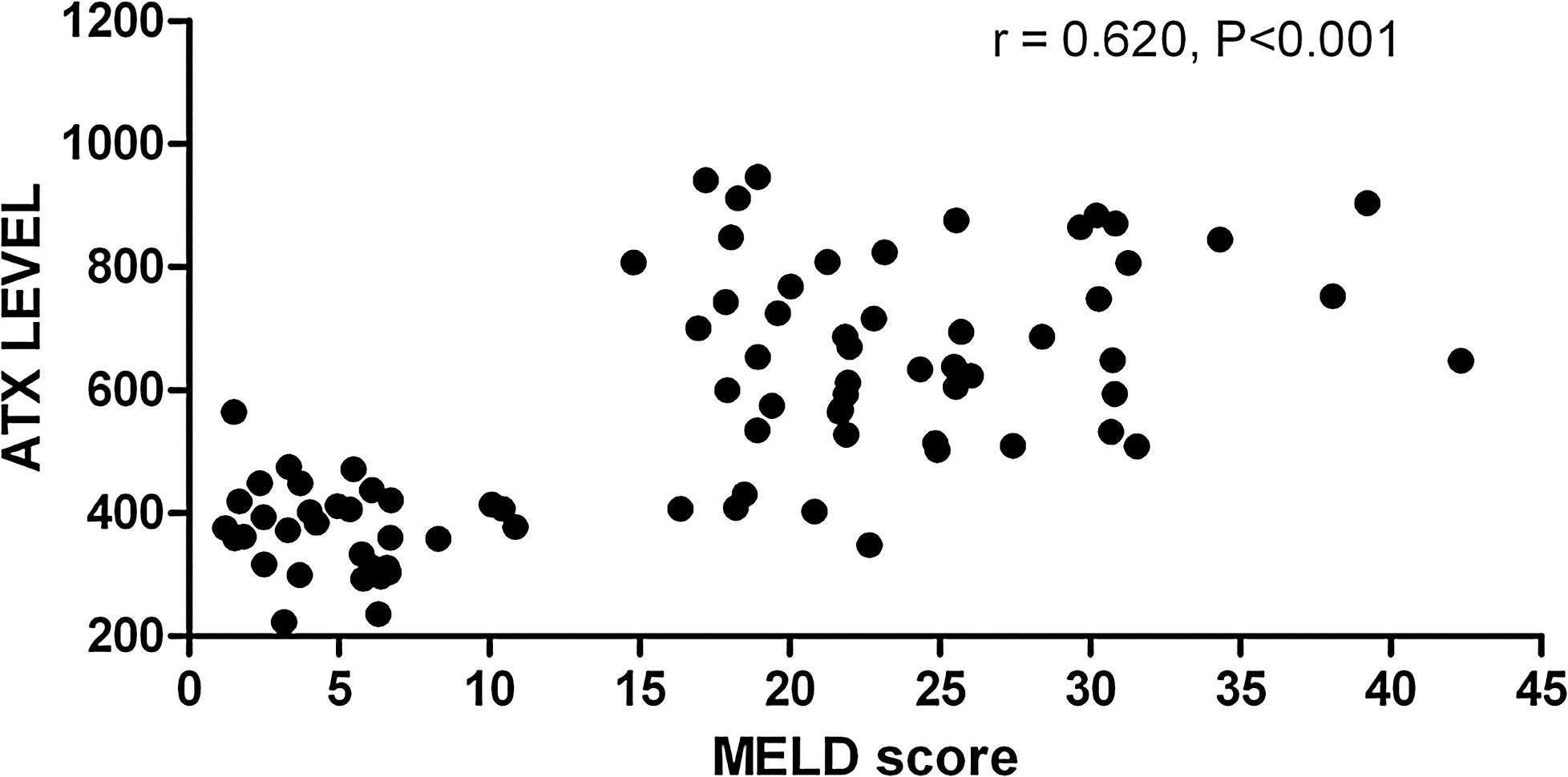 Relationship between serum ATX levels and MELD score in hepatitis B-related LC and ACLF patients.