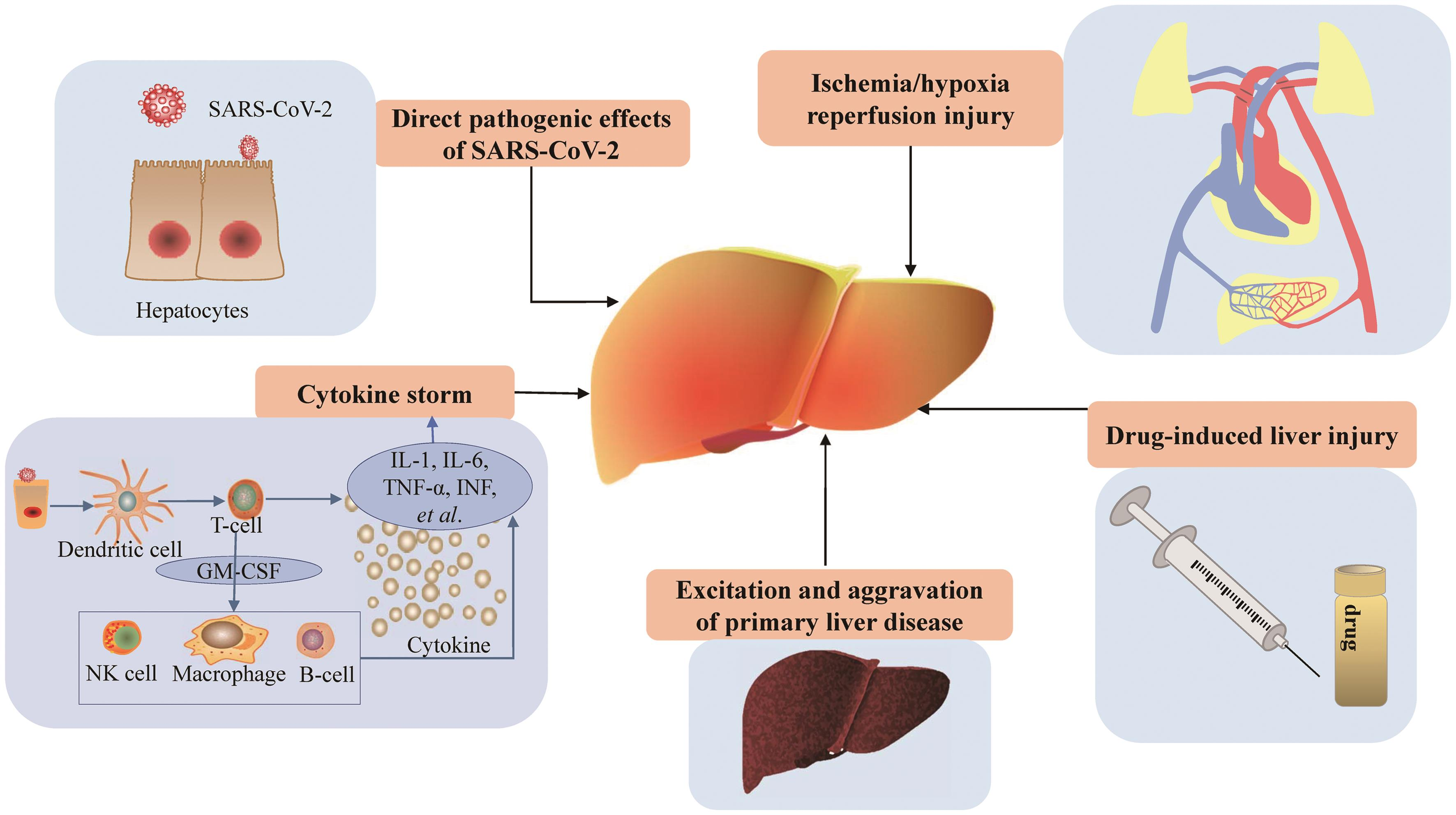 Pathogenesis of COVID-19-related liver injury.