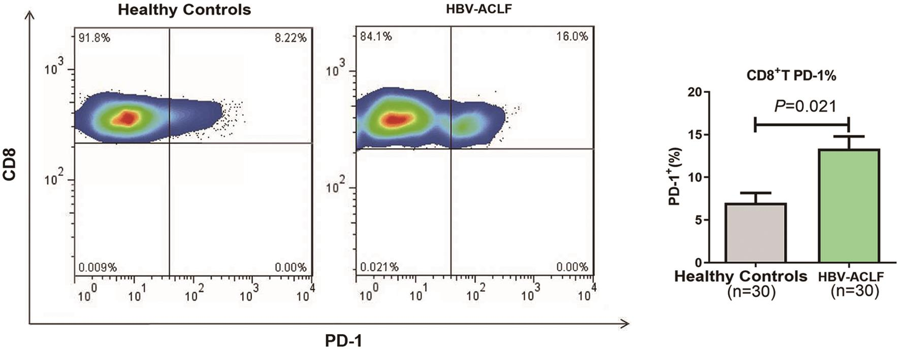 Expression of PD-1 in peripheral CD8+ T cells of patients with HBV-ACLF and HCs.