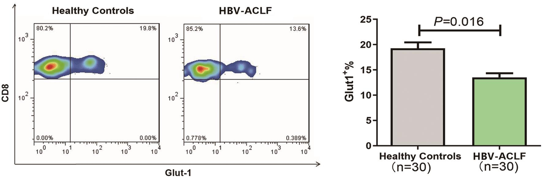 Expression of Glut1 in peripheral CD8+ T cells of patients with HBV- ACLF and HCs.