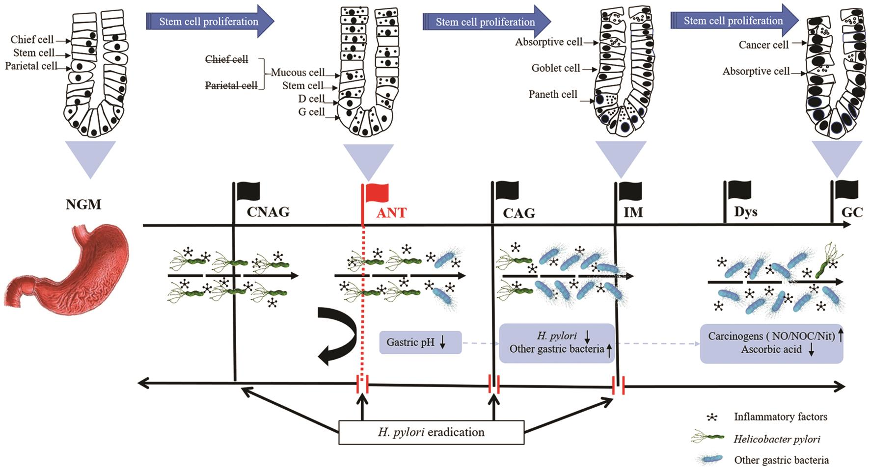 Proposed role of <italic>Helicobacter pylori</italic>-induced antralization in gastric carcinogenesis.