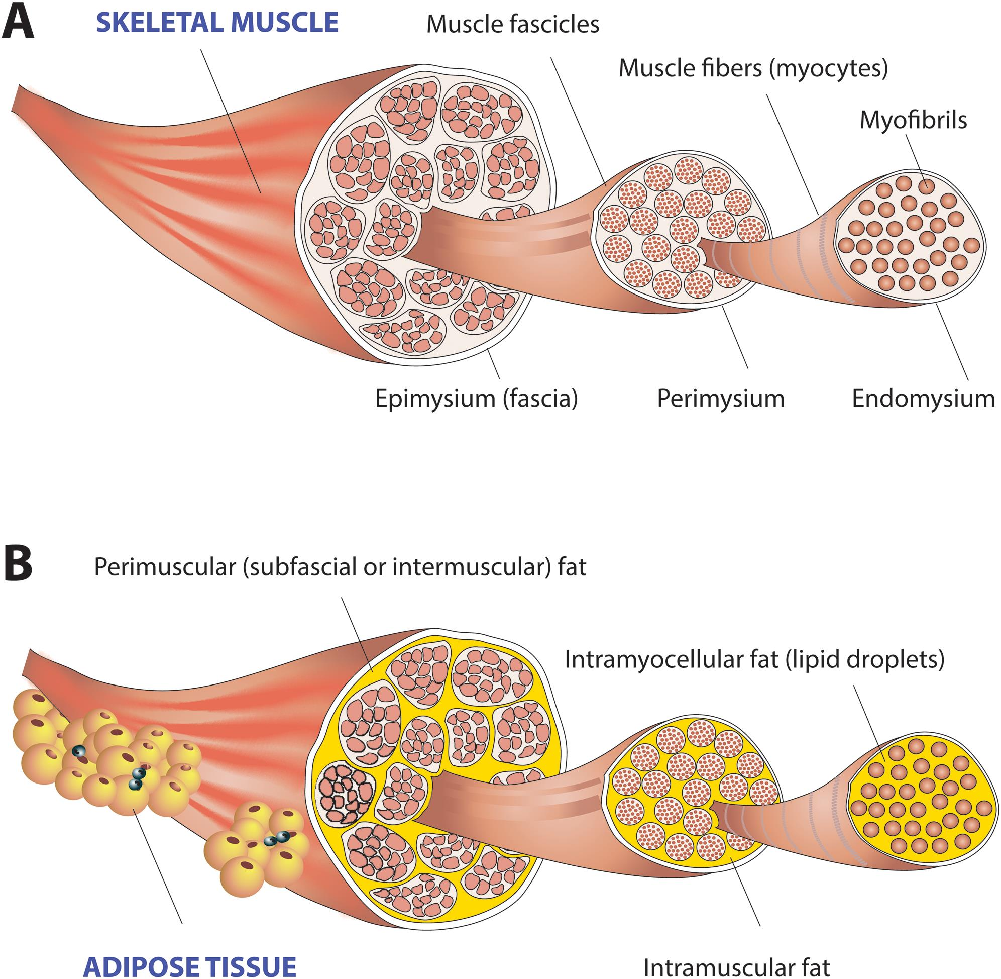 <bold>Skeletal muscle and fat deposition.</bold> (A) Skeletal muscle is made up of intramyocellular myofibrils, muscle fibers and fascicles bound together by successively thicker connective tissue layers as endomysium, perimysium, and epimysium. (B) Skeletal muscle fat may be classified as intramyocellular (lipid droplets filling the cytoplasm between myofibrils of elongated myocytes) and extramyocellular components. Adipocytes may infiltrate muscle fibers (intramuscular fat), fascicles (intermuscular fat), or exist around the epimysium as extramuscular fat depots of adipose tissue.