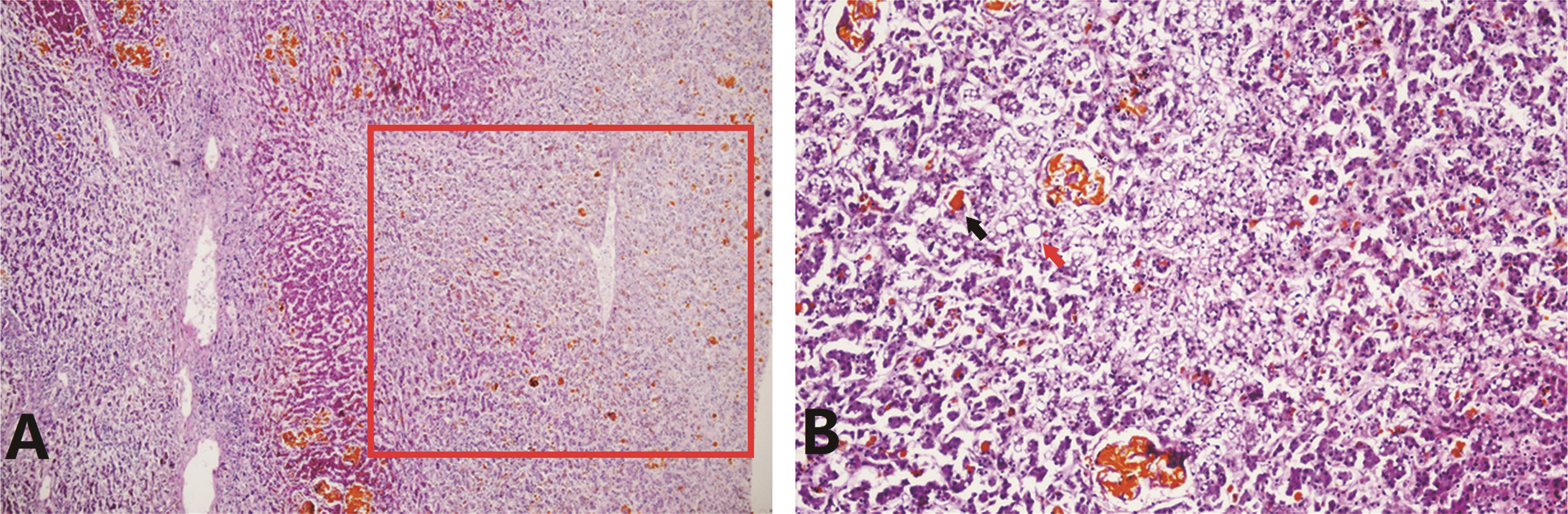 Liver histopathology of patient 1 revealed massive and submassive necrosis, cholestasis and steatosis.