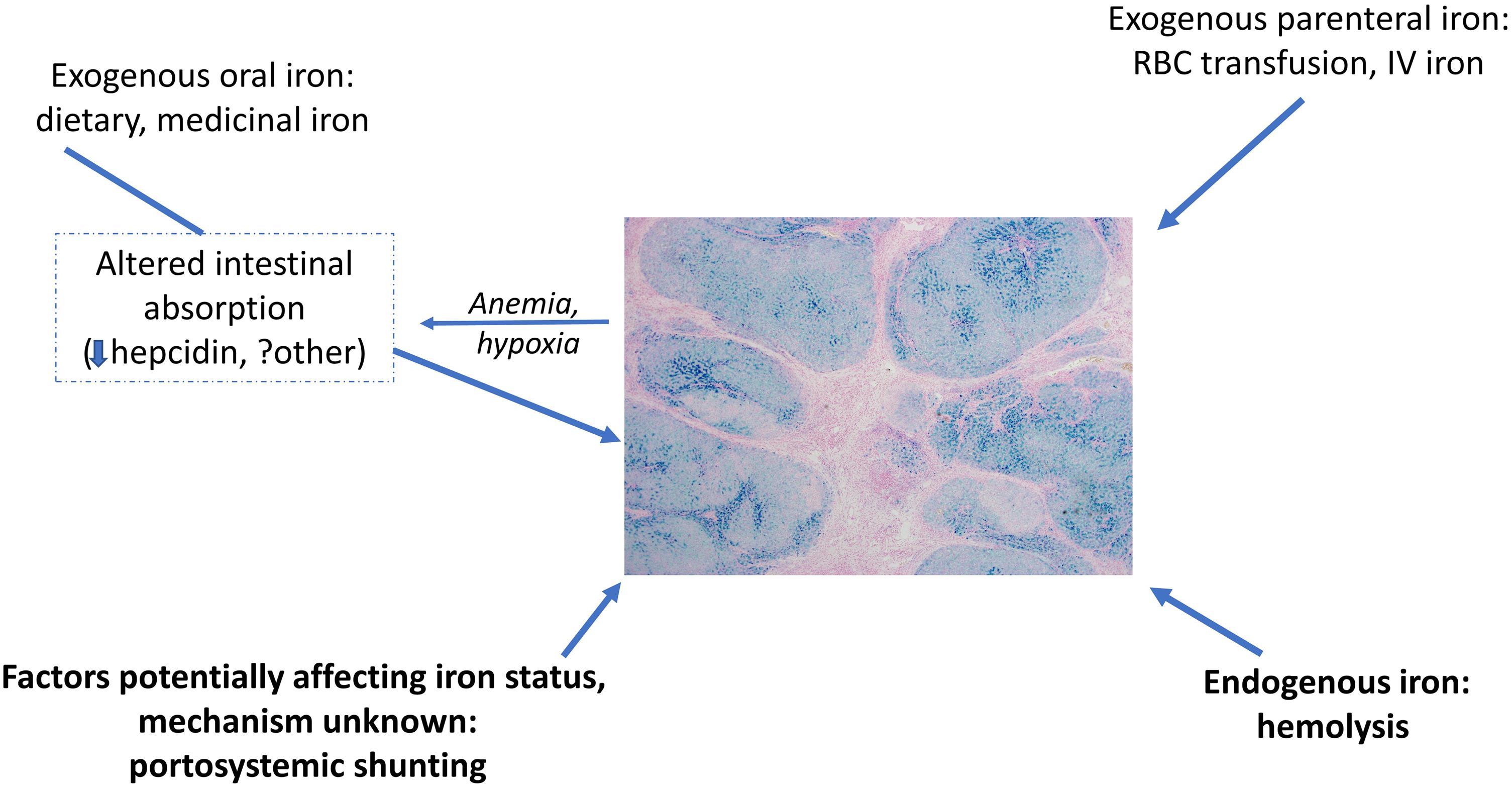 Potential contributors to hepatocellular iron deposition in cirrhosis.