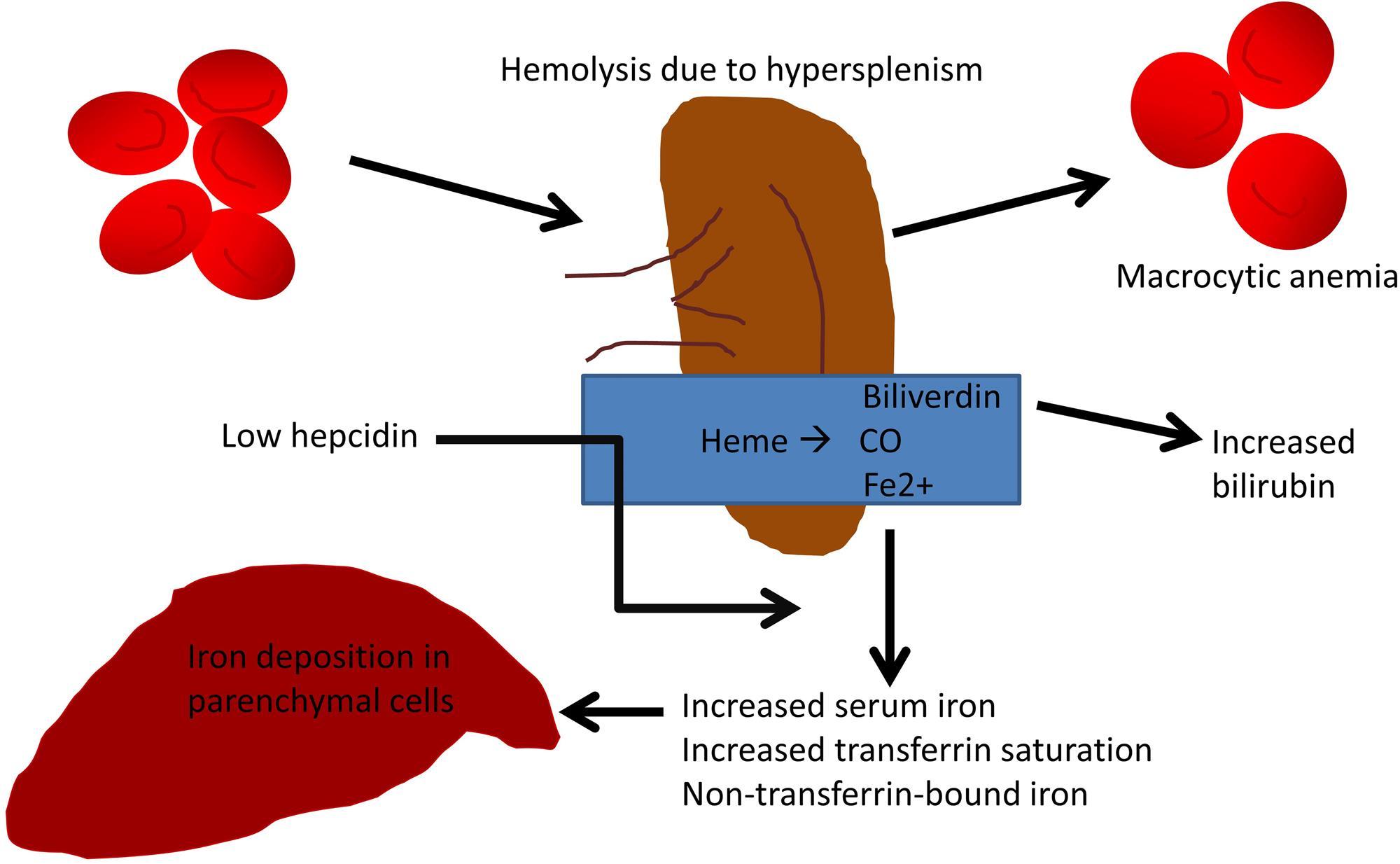 Hypothetical schema linking extravascular hemolysis to parenchymal iron deposition in cirrhotic livers.