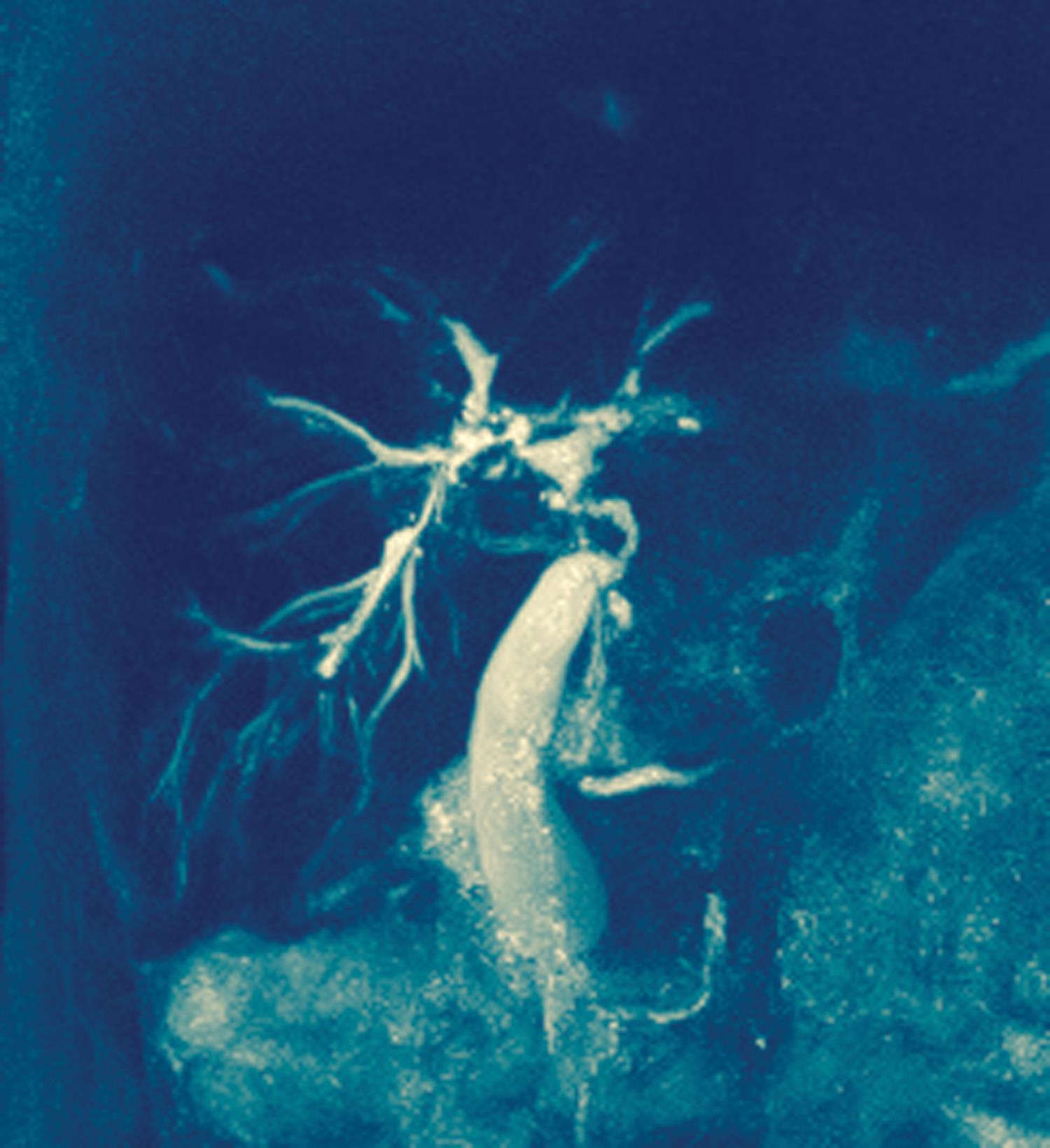 Primary Biliary Cirrhosis and Primary Sclerosing Cholangitis