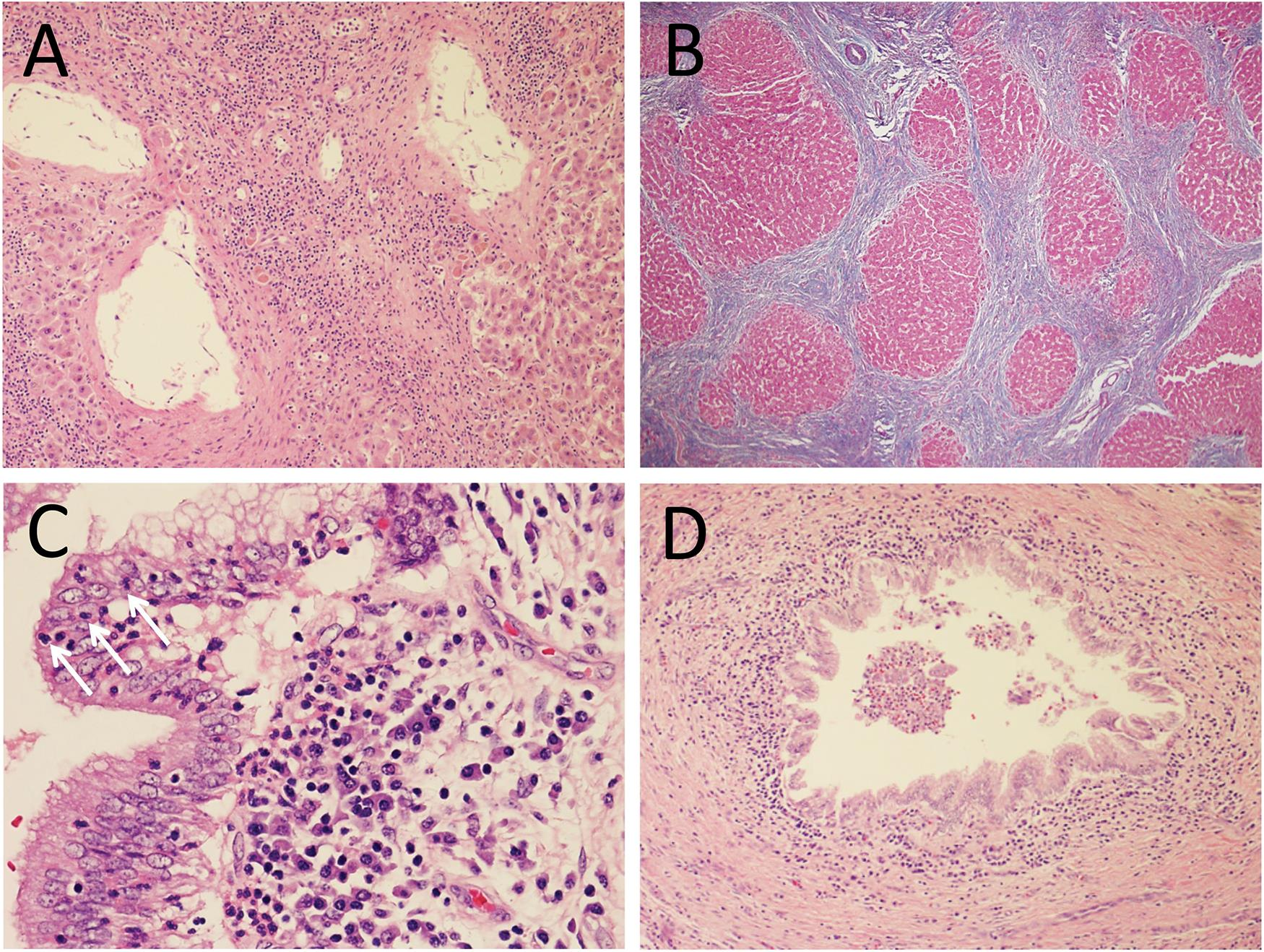 (A) Portal tract with preserved vascular structures, without accompanying bile duct, consistent with the patient's diagnosis of PSC; H&E stain, 100×. (B) Trichrome stain highlights cirrhotic liver parenchyma; MT stain, 100×. (C) Bile duct with numerous intraepithelial neutrophils (arrows); H&E stain, 400×. (D) Large bile duct with intraluminal collections of neutrophils; H&E stain, 100×.