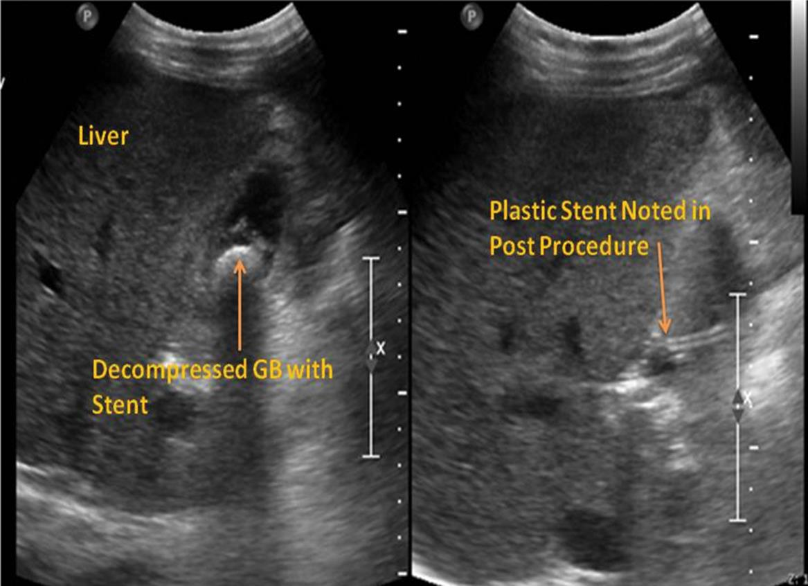 Abdominal ultrasound made 2 days post-procedure shows a decompressed gall bladder with stent inside (Left) and the plastic stent entering into the gall bladder (Right).