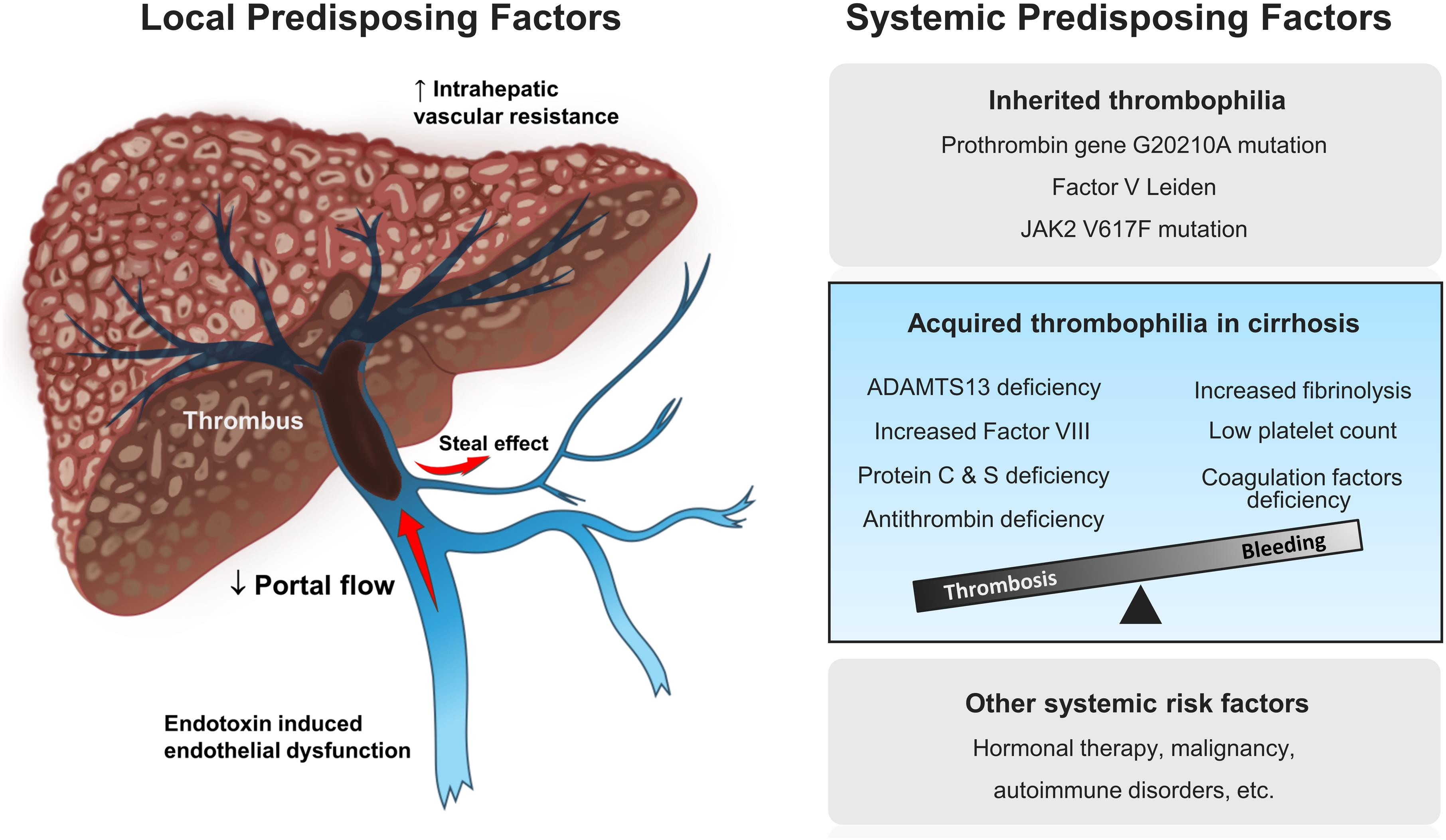 <bold>Pathogenesis of nontumoral portal vein thrombosis (PVT) in liver cirrhosis.</bold> Both local and systemic factors have been involved in the development of PVT in patients with cirrhosis. The portal venous system in cirrhosis represents a local predisposing factor prone to thrombus formation by reduced portal blood flow from portal hypertension and increased intrahepatic vascular resistance with the inflammatory milieu secondary to gut-derived bacterial lipopolysaccharide. Cirrhotics have been traditionally considered prone to bleeding due to thrombocytopenia, defects of procoagulant factors, and fibrinolysis. However, there is growing evidence that hypercoagulability is an important part of the hematological spectrum in cirrhosis. The unstable coagulation balance can be tiled toward thrombosis if any acute insult ensues.