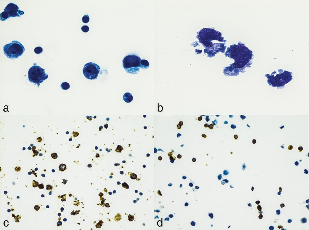 Ascitic fluid cytology from a patient with chylous ascites.