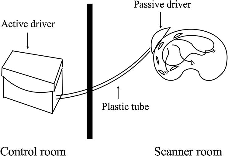 Illustration of the mechanical driver device in MR elastography.
