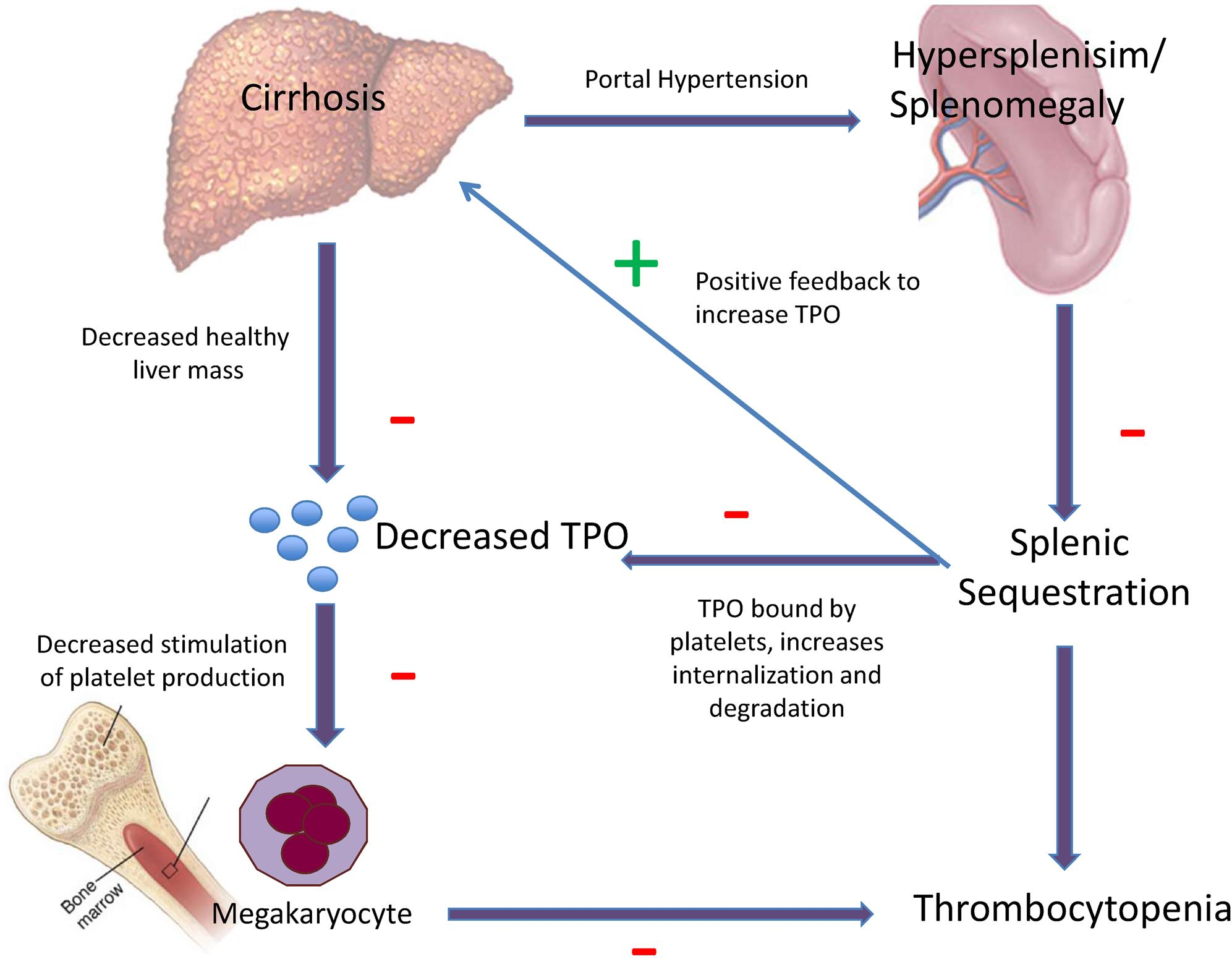 Relationships between cirrhosis and thrombocytopenia.