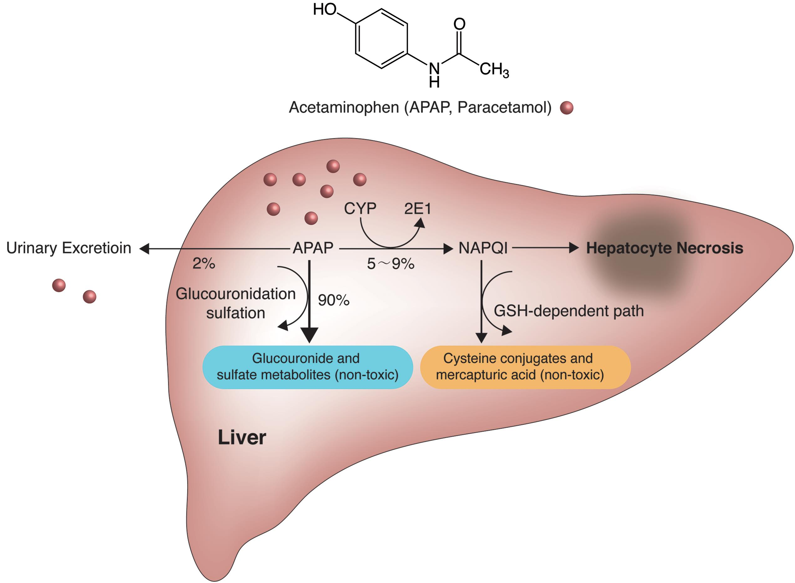 acetaminophen induced hepatotoxicity a comprehensive update