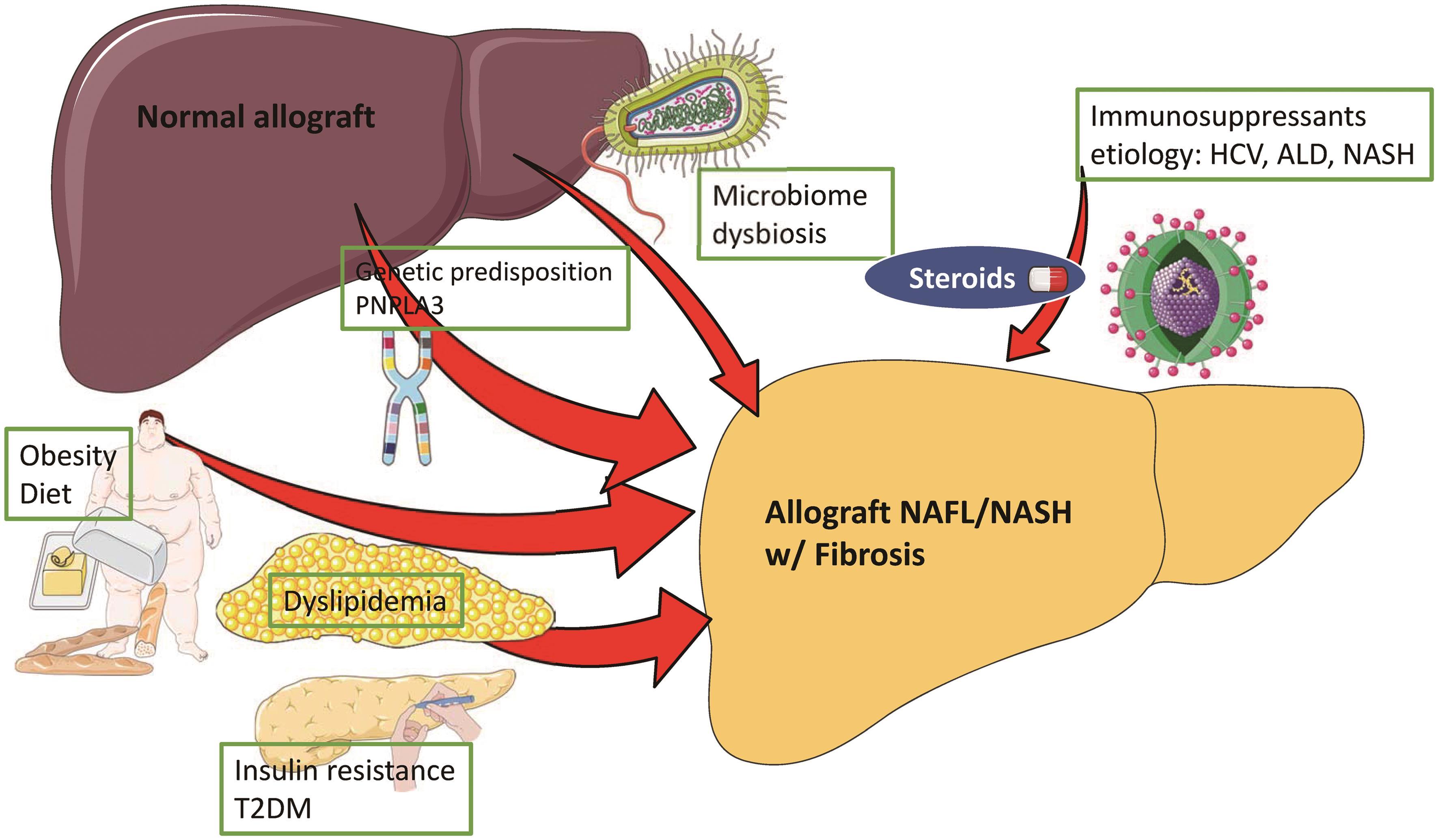 Factors involved in the pathogenesis of post-liver transplant NAFLD.