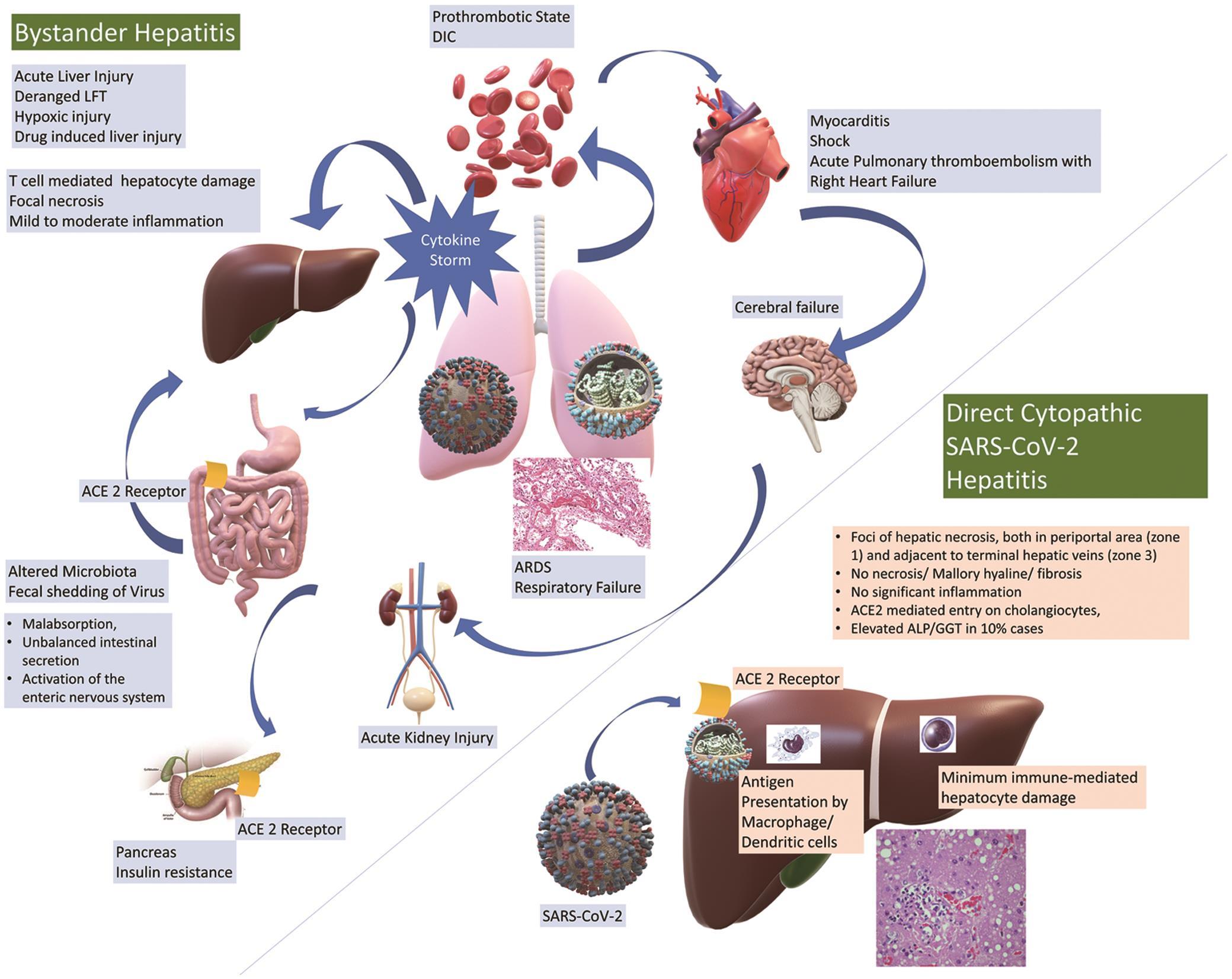 Etiopathogenesis of liver injury in COVID-19.
