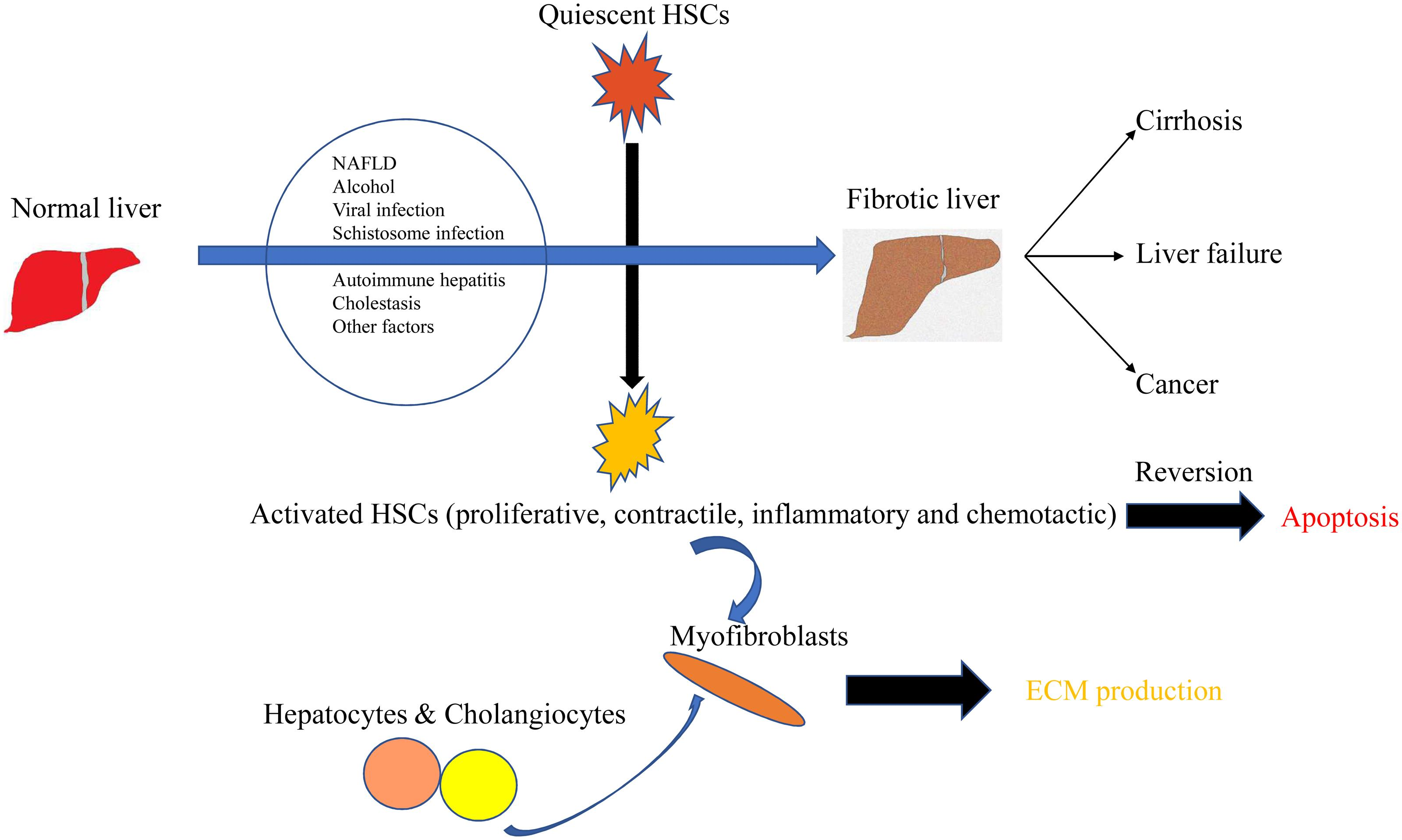 HSCs are the key cells in the progression and regression of liver fibrosis.