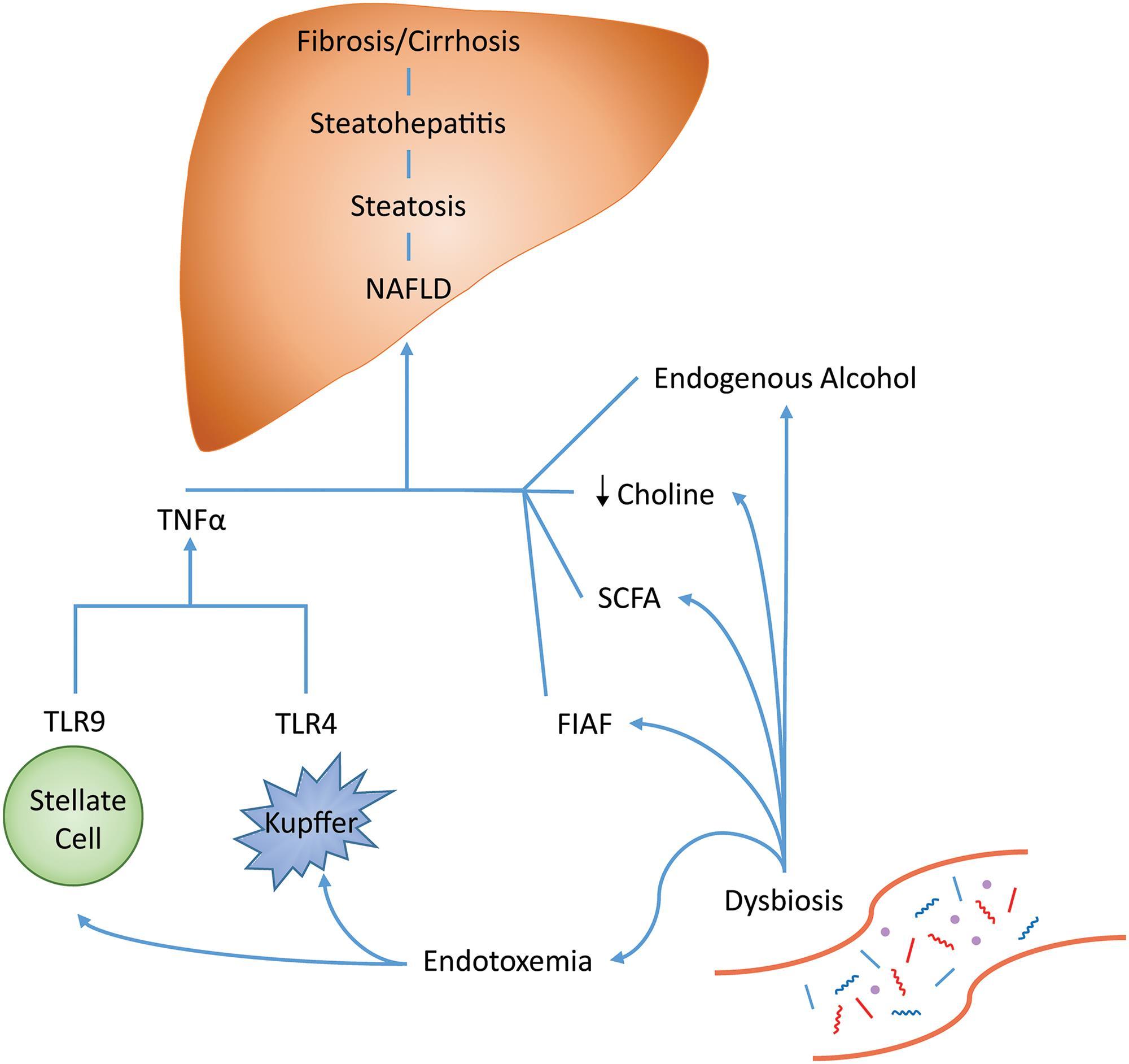 Mechanisms of dysbiosis and NAFLD development.