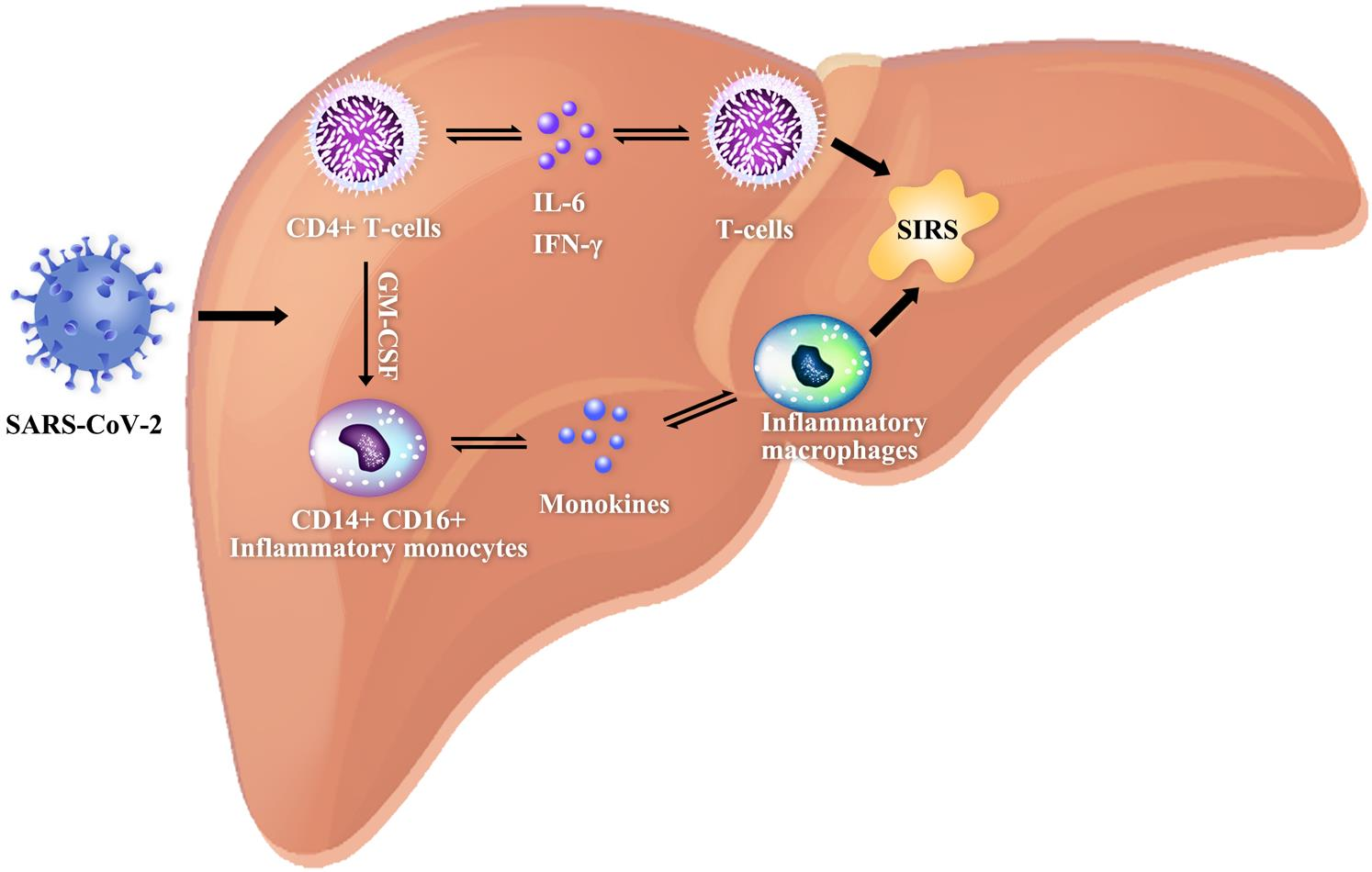"<bold>Schematic diagram showing the systemic inflammatory response syndrome induced by SARS-CoV2.</bold> After the SARS-CoV-2 infection, pathogenic T cells are rapidly activated, producing granulocyte-macrophage colony-stimulating factor (GM-CSF), interleukin (IL)-6 and other proinflammatory factors. GM-CSF will further activate CD14<sup>+</sup>CD16<sup>+</sup> inflammatory monocytes, producing a larger amount of IL-6 and other proinflammatory factors, and thereby inducing an inflammatory ""storm"" that leads to immune damage to other organs, such as the lungs and the liver. Both IL-6 and GM-CSF are two key proinflammatory factors that trigger the inflammatory ""storm"" in patients with COVID-19."